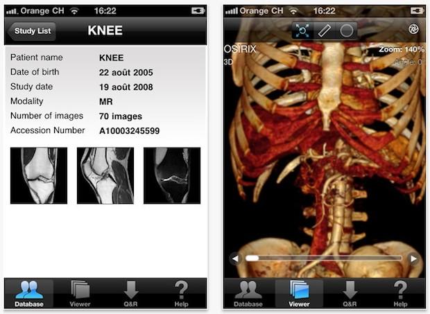DICOM viewer OsiriX for iPhone