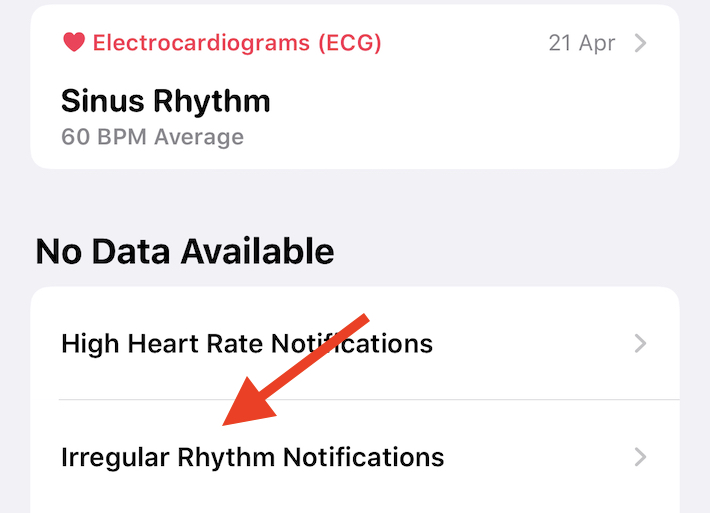 Tap irregular rhythm notifications